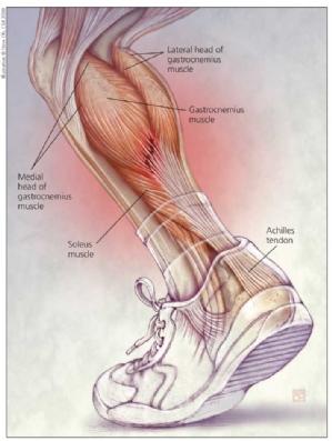 Como evitar lesões musculares na panturrilha no tênis